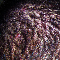 scalp_infection